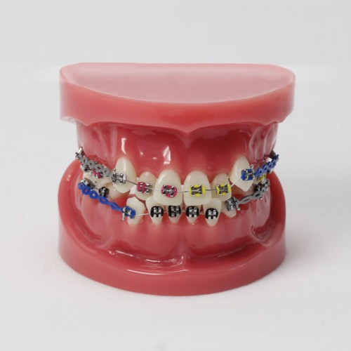 Dental Teeth Malocclusion Correct With Teeth Bracket Standard Model M3005
