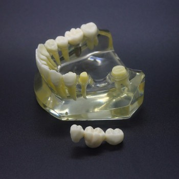 Dental Implant Study Typodont Model Lower Jaw Crown Bridge 2010