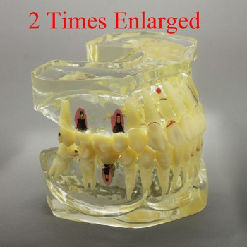 2 Times Enlarged Dental Restoration/ Prothesis/Implant Study model with Bridge
