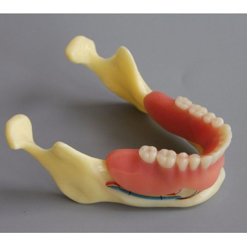 Dental Model #2014 02 - Mandible Implant and Overdenture Demo Model (Yellow)