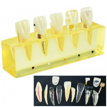 Dental Teeth Model 5Stages Demonstration Endodontic Treatment Root Canal Incisor