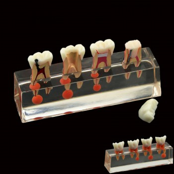 Dental Teeth Model 4-Stage Endodontic Treatment Demonstrates Anatomical M4018