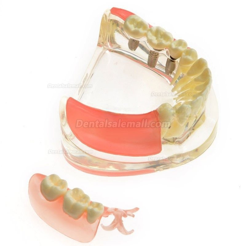 Dental Model Contrast Implant Restoration for Missing Molar Teeth M-6006