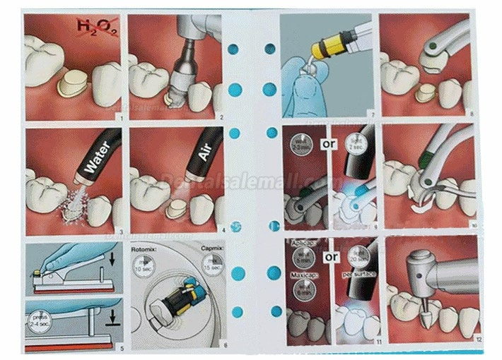 Dental Capsules Activator and Applier Capsules Activator and Applier Gun