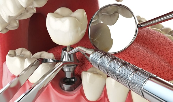 Dental-Implant-pain