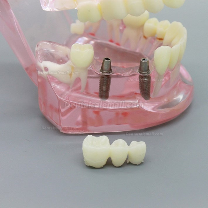 Dental Implant Study Analysis Demonstration Teeth Model with Restoration PINK