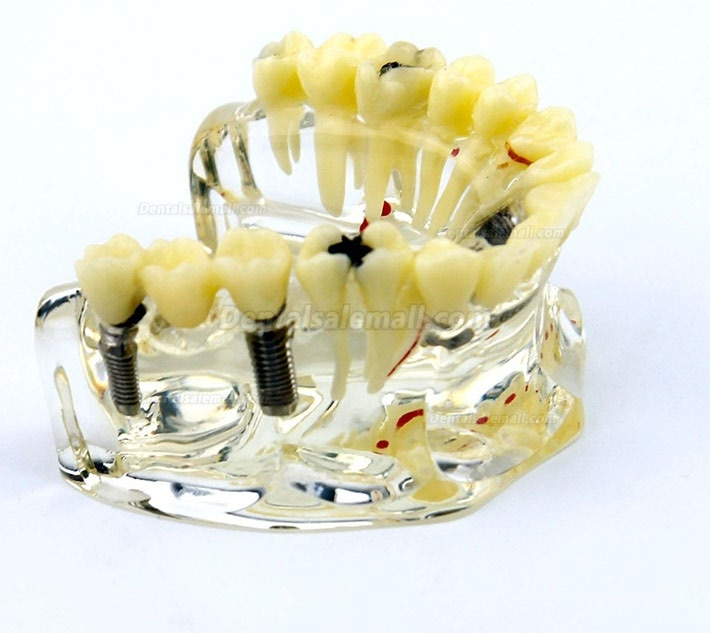 Dental Upper Jaw Implant Model with Bridge and Caries -I 2006