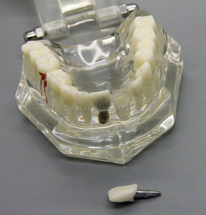 Dental Implant Study Analysis Demonstration Teeth Disease Model with Restoration