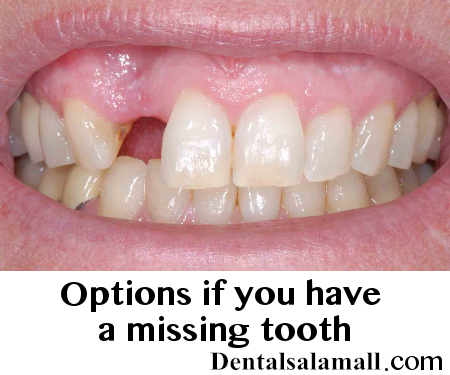 options-if-you-have-missing-tooth