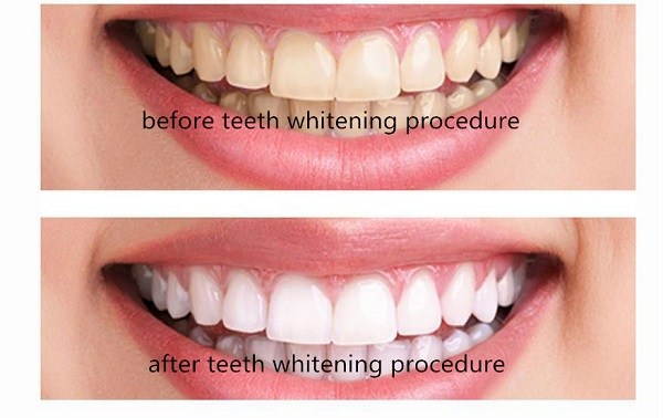 teeth-white